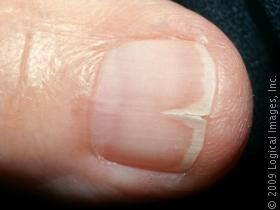 split fingernails